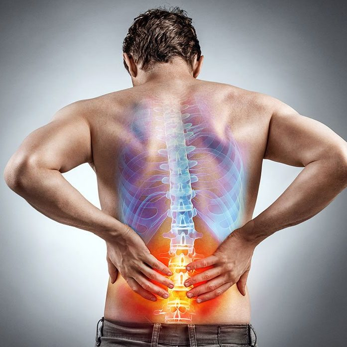 back-pain-image